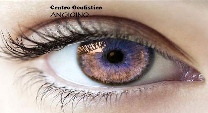CENTRO DIAGNOSTICO OCULARE ANGIOINO offerta visite oculistiche - occasione oculista Napoli
