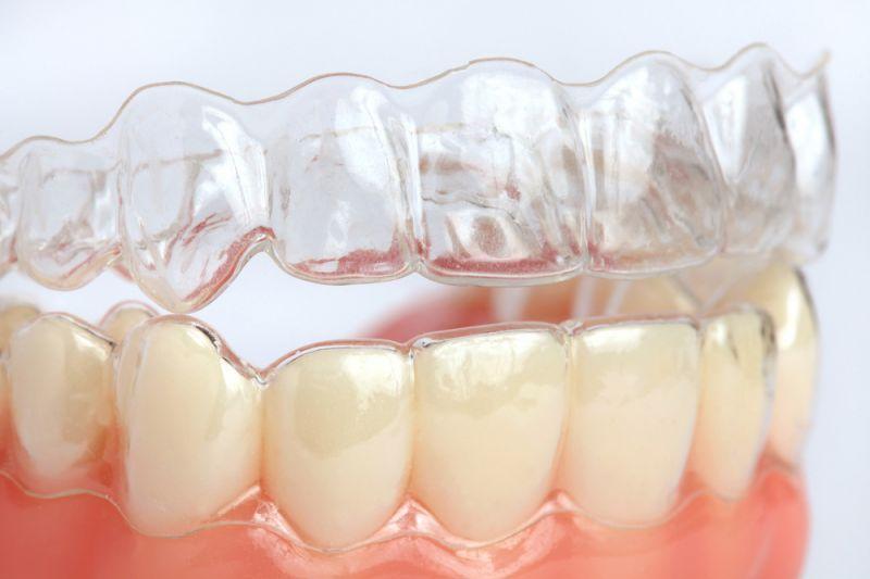Offerta apparecchio ortodontico invisibile - Promozione ortodonzia invisalign Reggio Emilia